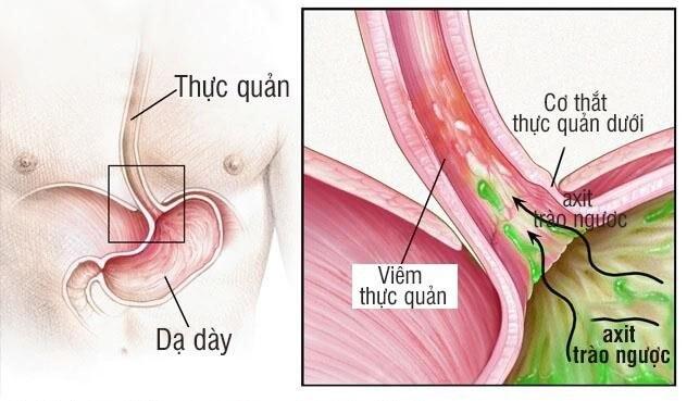 Viêm thực quản có thể là nguyên nhân dẫn đến đau thượng vị