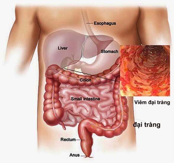 Bệnh viêm đại tràng co thắt là gì?