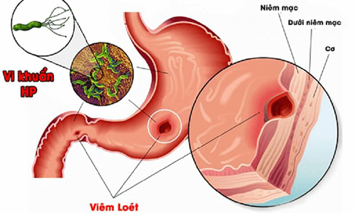 Là loại virus phổ biến về bệnh lý dạ dày - gây viêm loét dạ dày