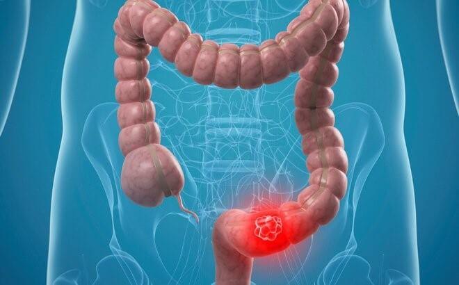 Viêm đường ruột là nguyên nhân gây nên đại tràng co thắt