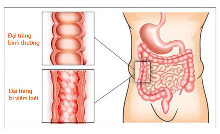 Hình ảnh so sánh giữa đại tràng bình thường và đại tràng bị viêm loét
