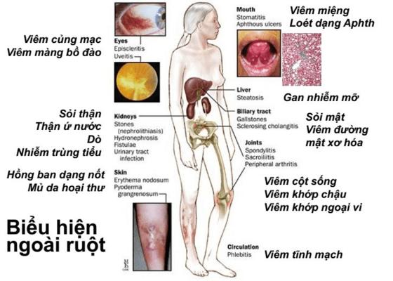 Biểu hiện ở ngoài ruột của viêm loét đại tràng