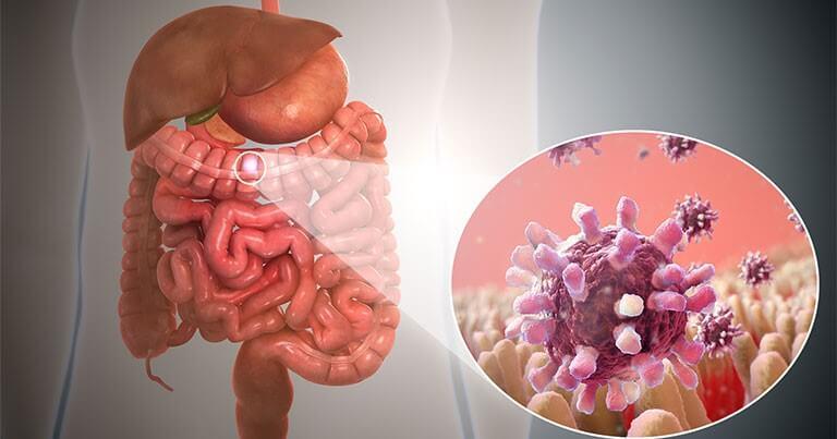 Viêm đại tràng cấp do vi khuẩn gây ra