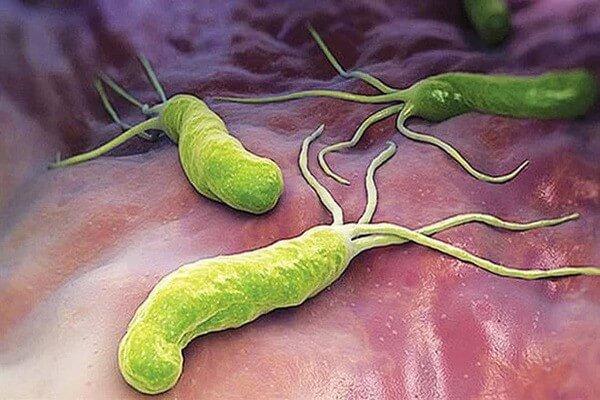 Vi khuẩn H.p là cái tên nằm trong nguyên nhân hàng đầu của viêm dạ dày tá tràng
