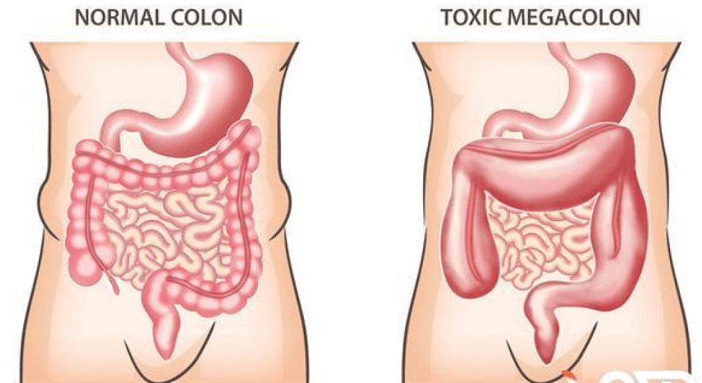 Viêm đại tràng giả mạc là gì? các triệu chứng của bệnh viêm đại tràng giả mạc