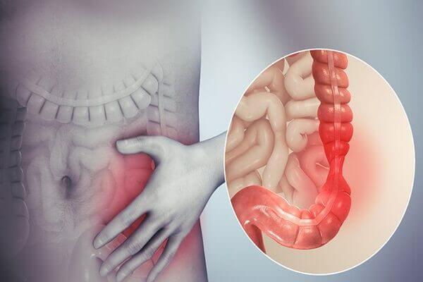 Viêm đại tràng mãn tính một bệnh thuộc viêm ruột phổ biến