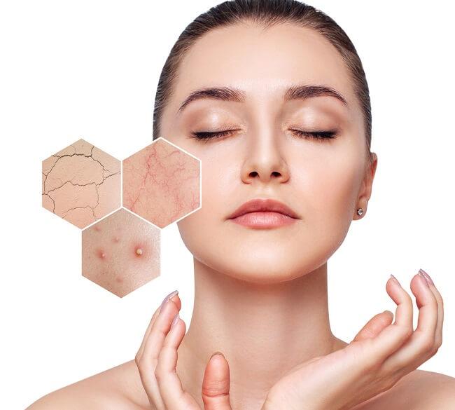 Nên chọn kem dưỡng da phù hợp với làn da nhạy cảm