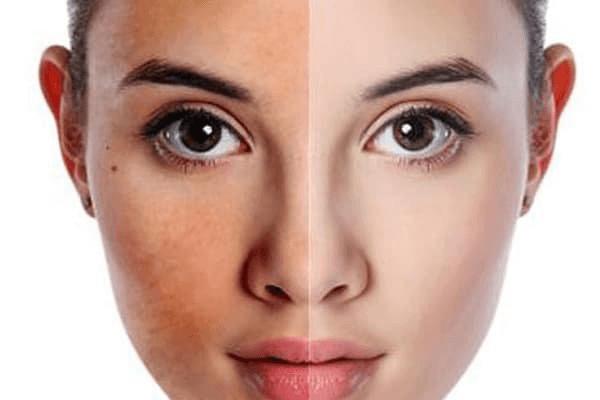 Dưỡng trắng da mặt là một trong những vấn đề hàng đầu của phái đẹp